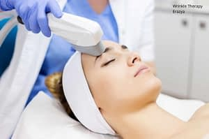 Laser Wrinkle Therapy