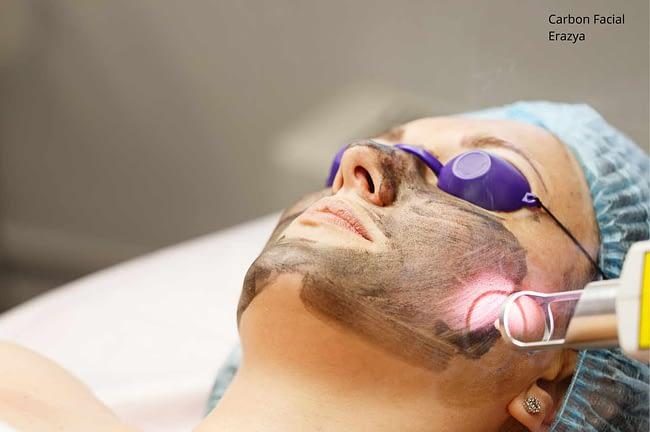 Laser Carbon Facial