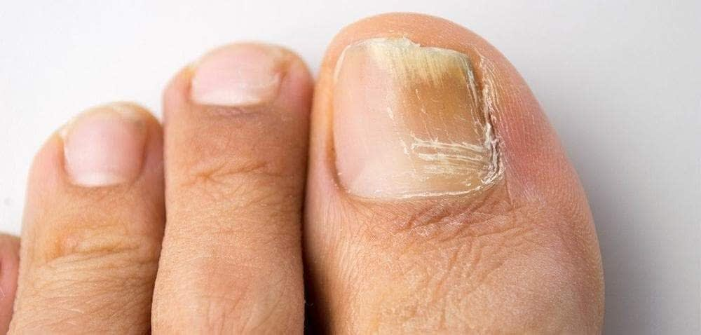 Fugal Toe Nail Infection