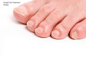 Laser Fungal Toe Treatment